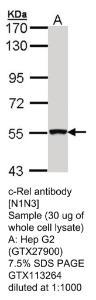 Anti-MBNL1 Rabbit Polyclonal Antibody