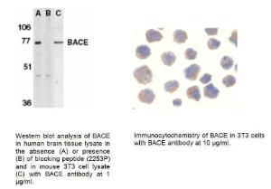 Anti-BACE Rabbit Polyclonal Antibody