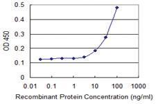 Anti-NR1H3 Mouse Monoclonal Antibody [clone: 3000000000]