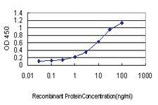 Anti-SCAMP3 Mouse Monoclonal Antibody [clone: 3G4]