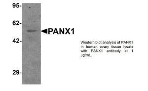 Anti-PANX1 Rabbit Polyclonal Antibody