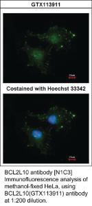 Anti-FZD9 Rabbit Polyclonal Antibody