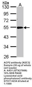 Anti-ACP2 Rabbit Polyclonal Antibody