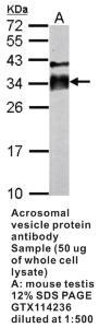 Anti-ACRV1 Rabbit Polyclonal Antibody