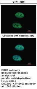 Anti-DDX3 Rabbit Polyclonal Antibody