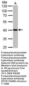 Anti-HTATSF1 Rabbit Polyclonal Antibody
