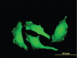 Anti-ATP9A Mouse Monoclonal Antibody [clone: 3G2]