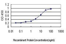 Anti-PDCD7 Mouse Monoclonal Antibody [clone: 3H5]
