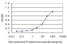 Anti-USH1C Mouse Monoclonal Antibody [clone: 2B9]