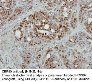 Anti-NCBP1 Rabbit Polyclonal Antibody