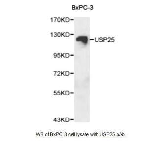 Anti-USP25 Rabbit Polyclonal Antibody