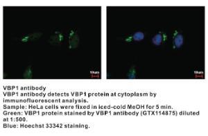 Anti-VBP1 Rabbit Polyclonal Antibody