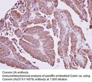 Anti-CORO2A Rabbit Polyclonal Antibody