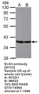Anti-ELK3 Rabbit Polyclonal Antibody