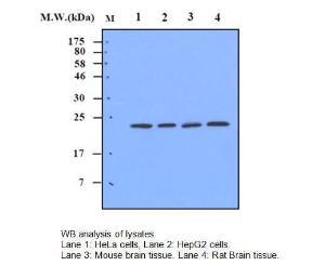 Anti-Superoxide Dismutase 2 Mouse Monoclonal Antibody [clone: 2A1]