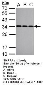 Anti-SNRPA Rabbit Polyclonal Antibody