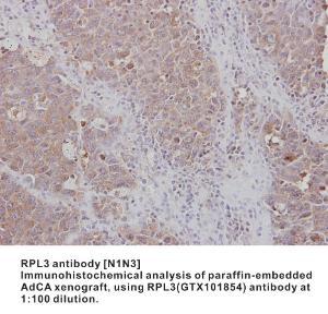 Anti-RPL3 Rabbit Polyclonal Antibody