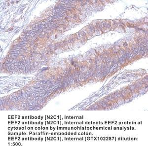 Anti-EEF2 Rabbit Polyclonal Antibody