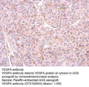 Anti-PPP6C Rabbit Polyclonal Antibody