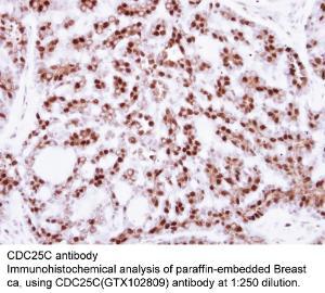 Anti-PIM2 Rabbit Polyclonal Antibody