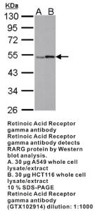 Anti-PDE4A Rabbit Polyclonal Antibody