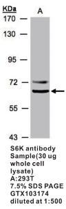 Anti-RPS6KB1 Rabbit Polyclonal Antibody