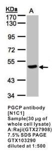 Anti-PGCP Rabbit Polyclonal Antibody