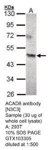 Anti-NOTCH1 Rabbit Polyclonal Antibody