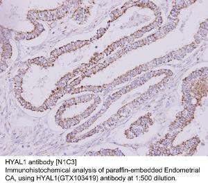 Anti-HYAL1 Rabbit Polyclonal Antibody