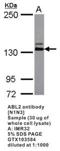 Anti-ABL2 Rabbit Polyclonal Antibody