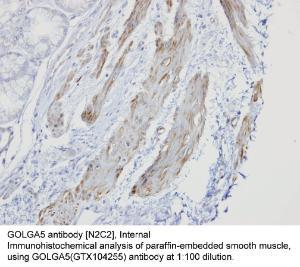 Anti-CK18 Rabbit Polyclonal Antibody