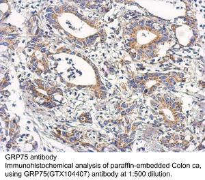 Anti-IL6 Rabbit Polyclonal Antibody