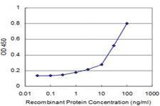 Anti-MAGED2 Mouse Monoclonal Antibody [clone: 6G10]
