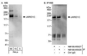 Anti-SMCX Rabbit Polyclonal Antibody