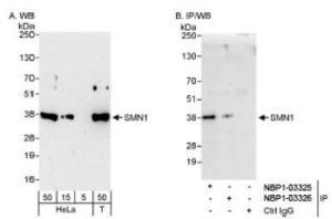 Anti-SMN Rabbit Polyclonal Antibody