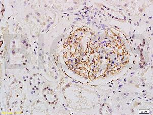 Anti-ESM1 Rabbit Polyclonal Antibody