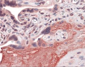 Immunohistochemistry of human placenta tissue stained using ADAM17 Monoclonal Antibody.