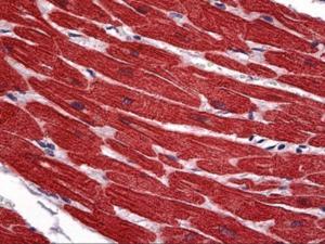 Immunohistochemistry of human heart tissue stained using CTnT Monoclonal Antibody.