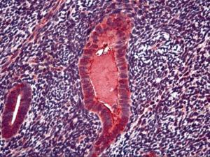 Immunohistochemistry of human uterus, endometrium stained using CA-125 Monoclonal Antibody.