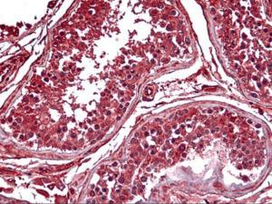 Immunohistochemistry of human testis tissue stained using PDK2 Monoclonal Antibody.