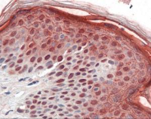Human skin tissue stained with AURKB Antibody at 10 ug/mL followed by biotinylated secondary antibody, alkaline phosphatase-streptavidin and chromogen.