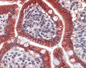 Immunohistochemistry of human small intestine tissue stained using CDH17 Monoclonal Antibody.