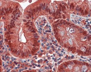 Anti-LGALS4 Mouse Monoclonal Antibody