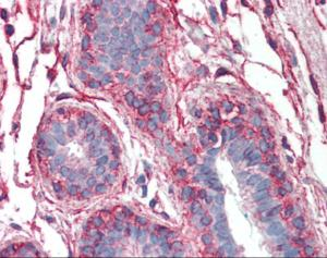 Immunohistochemistry of human breast tissue stained using PAK1 Monoclonal Antibody.