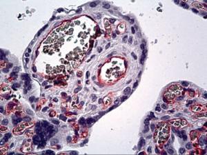 Immunohistochemistry of human placenta, endothelium stained using Endothelium Monoclonal Antibody.