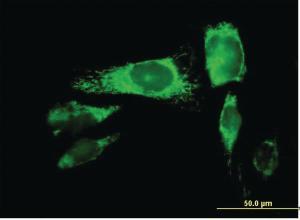 Anti-PRDX3 Mouse Polyclonal Antibody