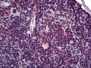 Immunohistochemistry of mouse spleen tissue stained using T cell Receptor Monoclonal Antibody.