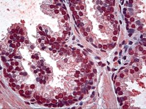 Immunohistochemistry of human prostate tissue stained using OSR1 Monoclonal Antibody.