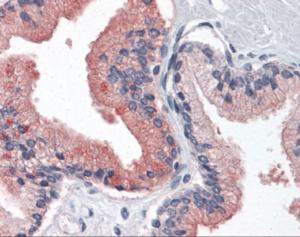 Human prostate tissue stained with B2M Antibody at 10 ug/mL followed by biotinylated anti-mouse IgG secondary antibody, alkaline phosphatase-streptavidin and chromogen.