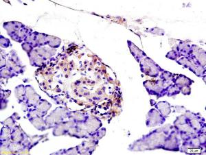 Anti-CYBB Rabbit Polyclonal Antibody